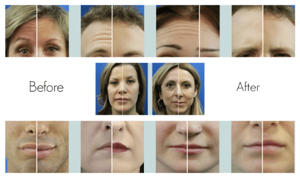 Cheapest Botox in Dallas
