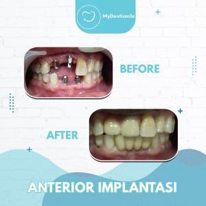 Anterior Implantasi