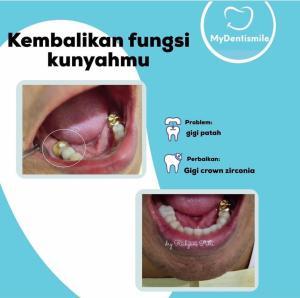 Kembalikan fungsi kunyahmu gigi crown zirconia