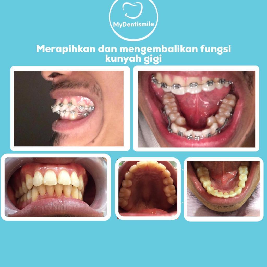 Merapihkan dan mengembalikan fungsi kunyah gigi