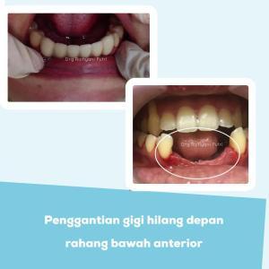 Penggantian gigi hilang depan rahang bawah anterior