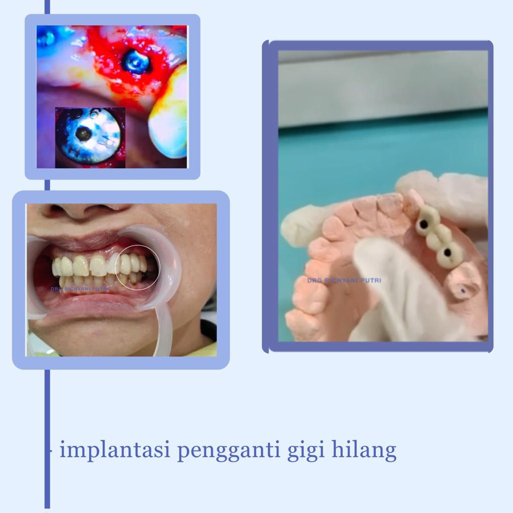 implentasi pengganti gigi hilang