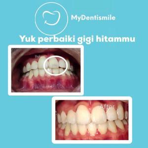 Yuk perbaiki gigi hitammu