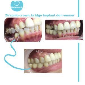 Zirconia crown bridge implant dan venner