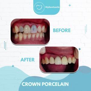 crown porcelain