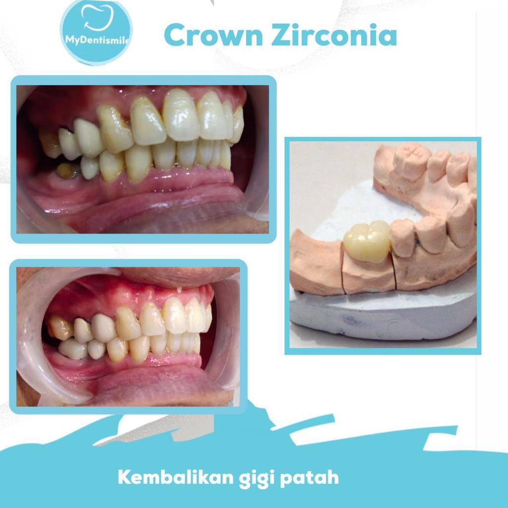 crown zirconia kembalikan gigi patah