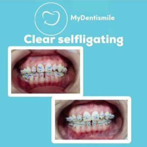 Clear self ligating