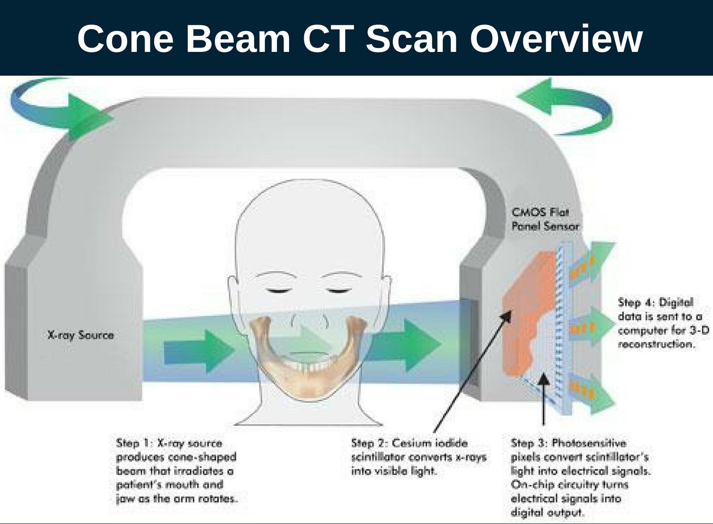 Dental Cone Beam Ct Scan Burbank