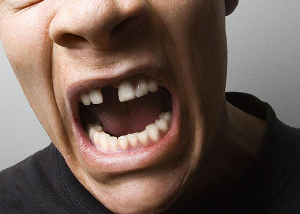 tooth loss dentist