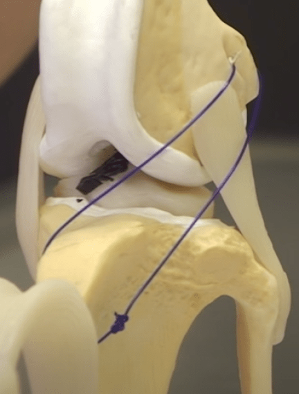 Dog CCL Injuries Extracapsular Repair: Lateral Suture Stabilization