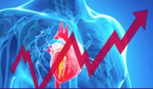 EKG Electrocardiogram