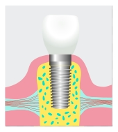 dental implant Fairfax