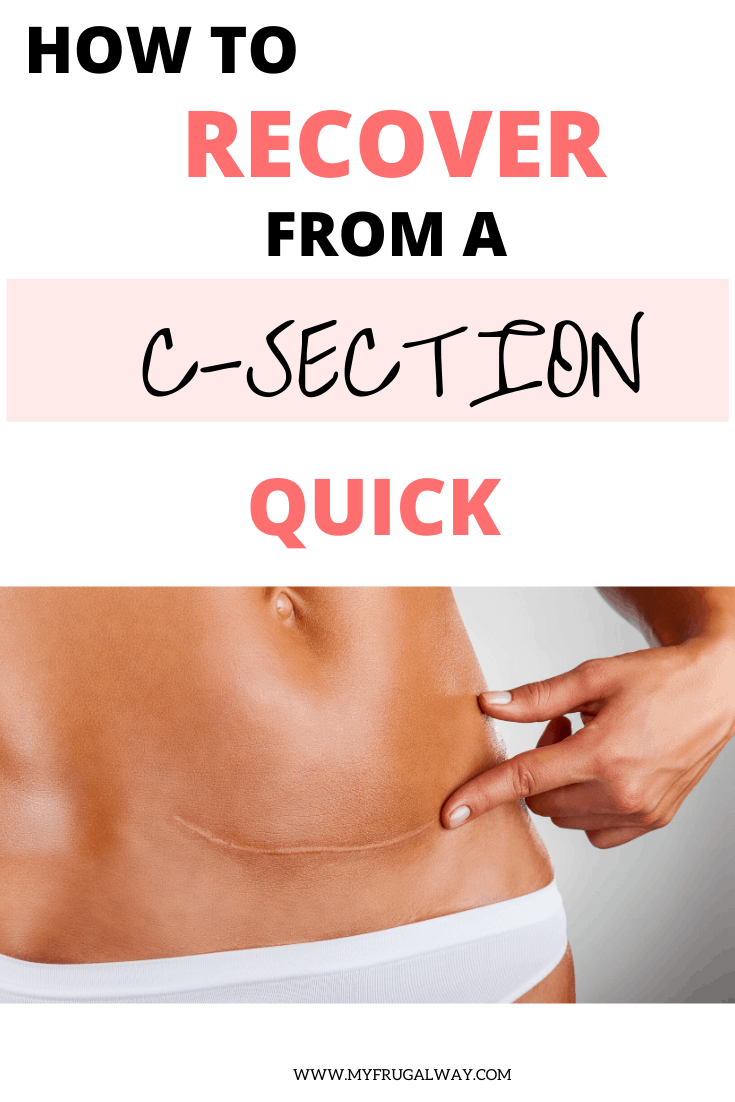 How To Recover From A C-Section - MyFrugalWay