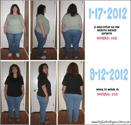 Before and After Gastric Bypass Week 33