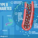 Type 2 Diabetes Cure? It is looking good !!