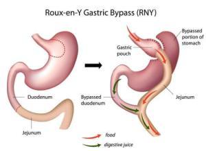 Gastric Bypass Bloodwork
