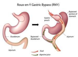 Nutritionist Archives My Gastric Bypass Story