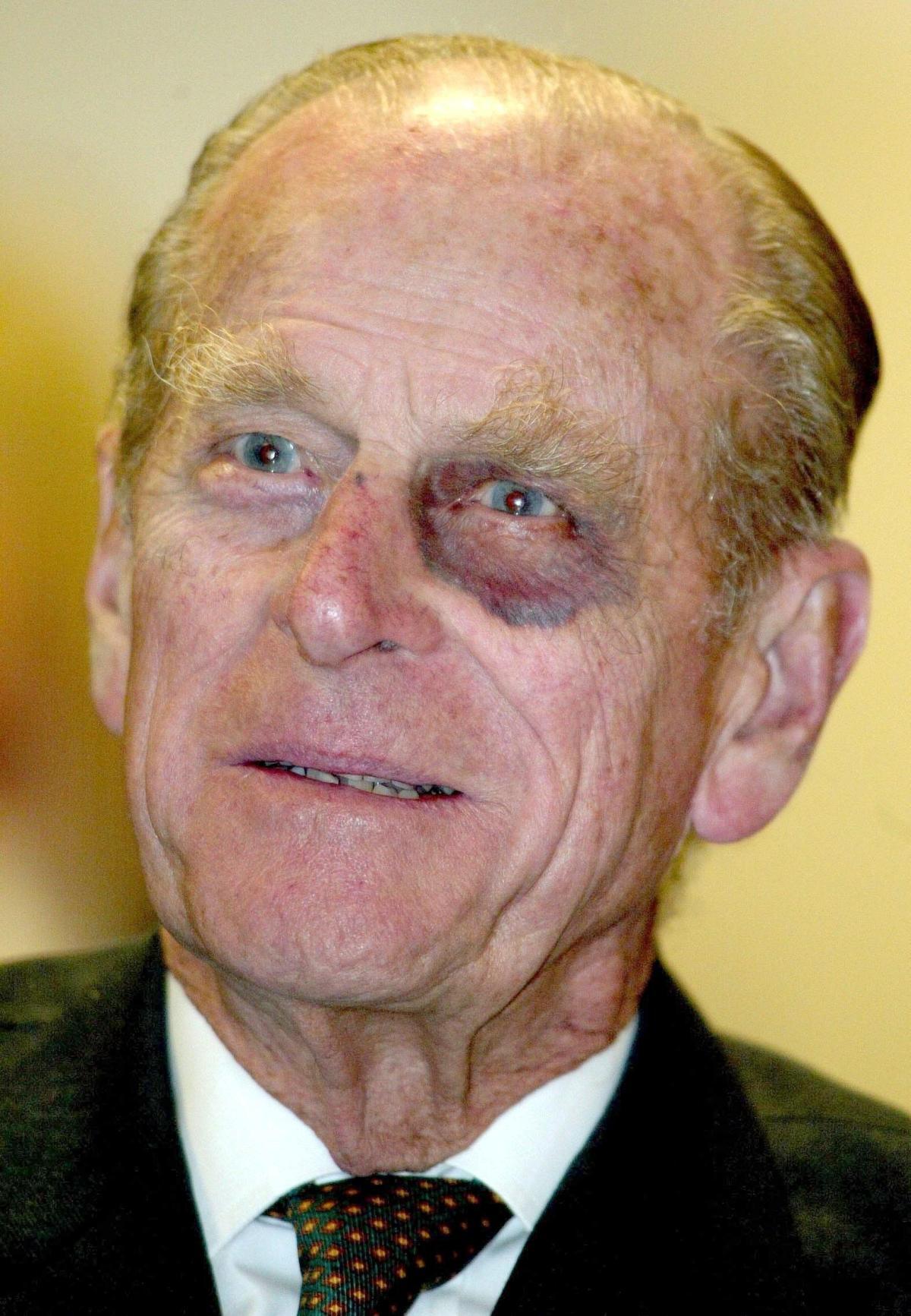 Принц Фили́пп Маунтбеттен, ге́рцог Эдинбу́ргский с синяком под глазом