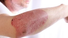 Psoriasis symptoms cause treatment myhealthincheck