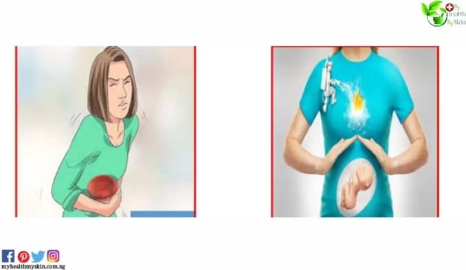 Acidity / heartburn during pregnancy