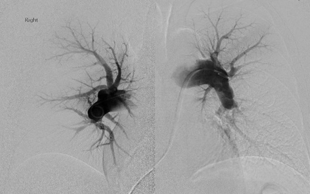 Patient #1: Left and Right angiograms demonstrate filling defects.
