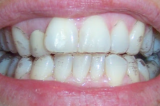 Pictures Wearing Invisalign Braces - My Invisalign Blog