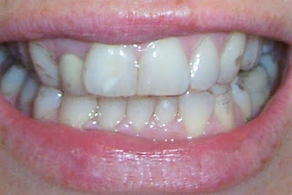Pictures Wearing Invisalign Braces