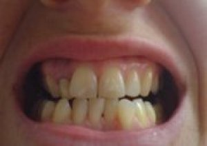 English Teeth Before Invisalign