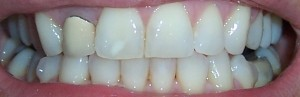 how to remove invisalign attachments