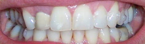 smile teeth set 29