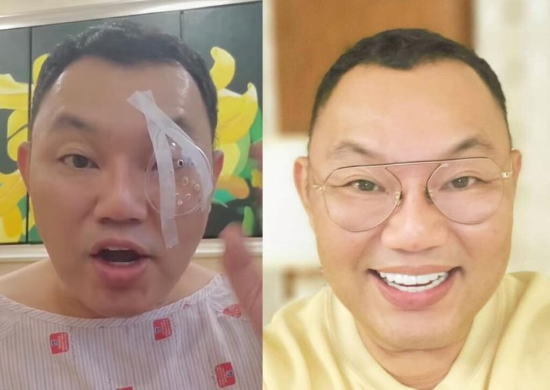 Michael Ang bedah mata kerana glaukoma