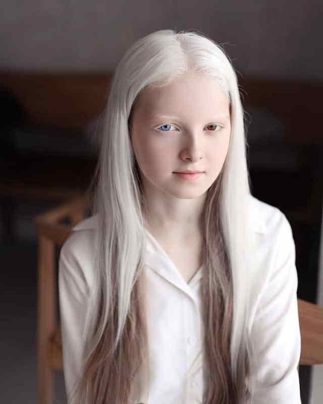 Stunning Portraits of 11-Year-Old Girl With Albinism and Heterochromia