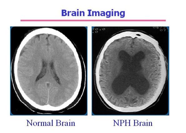 brain-imaging