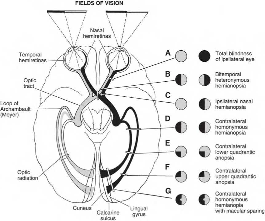 Cranial Nerve 2: Optic Nerve