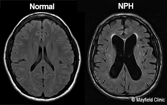 MRI scans comparing normal ventricles and NPH
