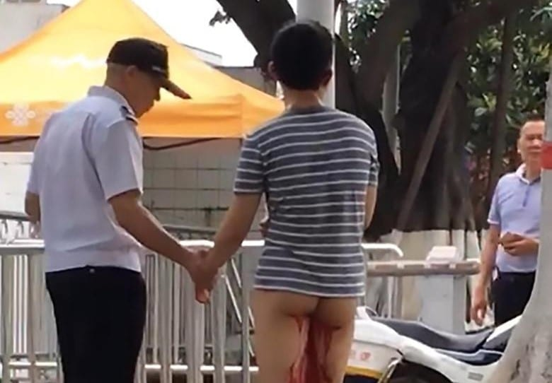 China: Man cuts off his genitals after girlfriend mocked his small penis
