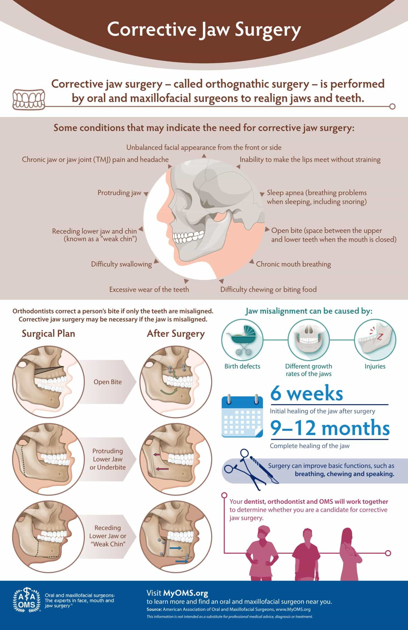 Corrective Jaw Surgery Infographic