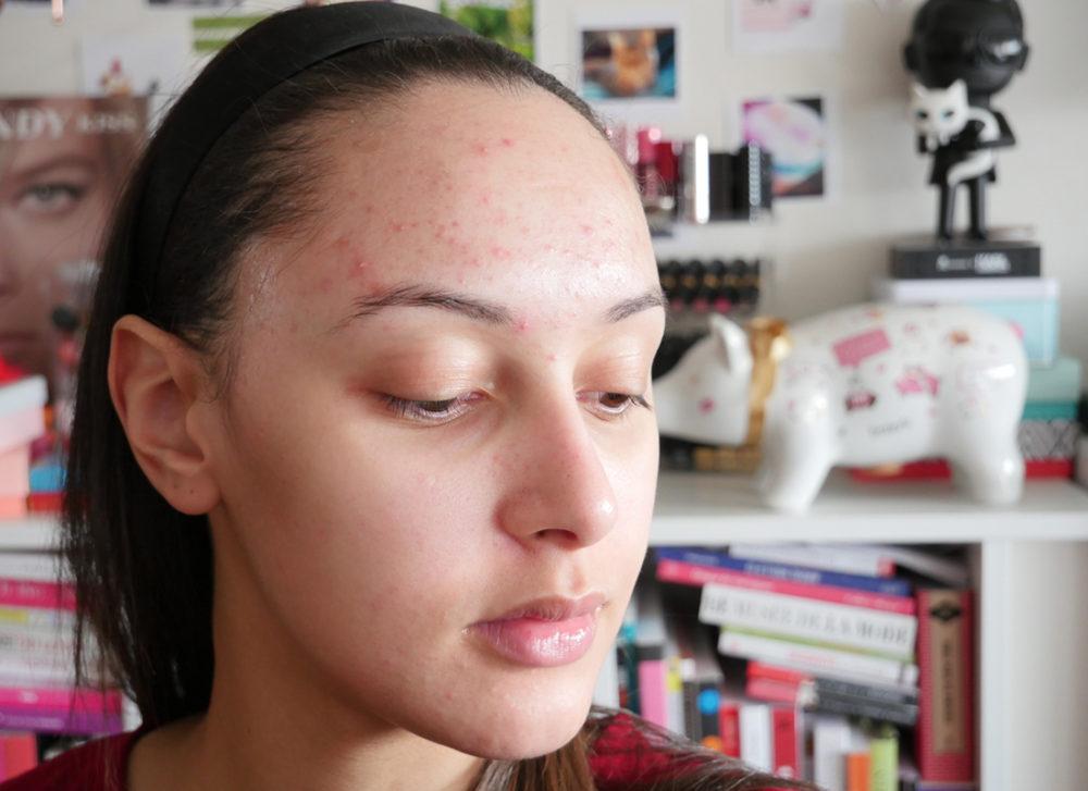 fond-de-teint-peach-perfect-avant-peau-acne