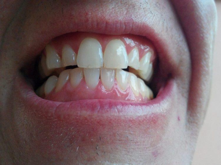 Teeth-After-1024x768