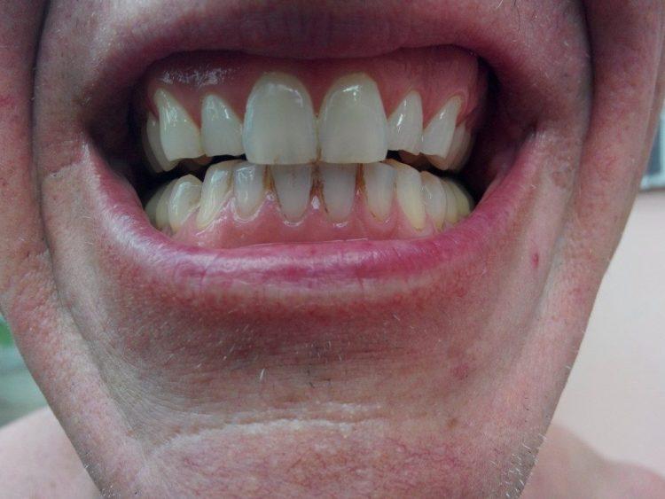 Teeth-Before-1024x768