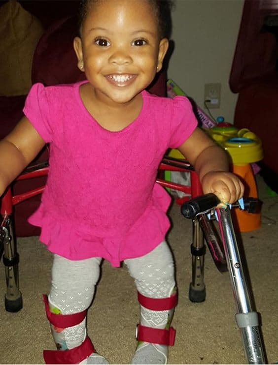 Little girl with spina bifida walks for the first time.