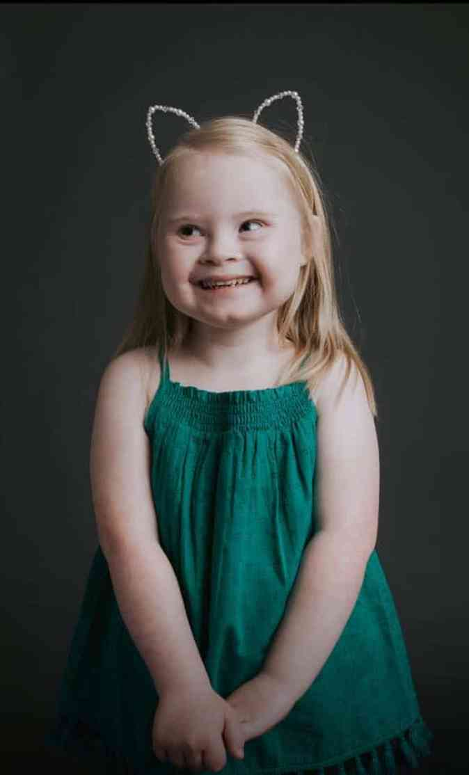 Grace Isabella Wharton, a child modelling with Down syndrome