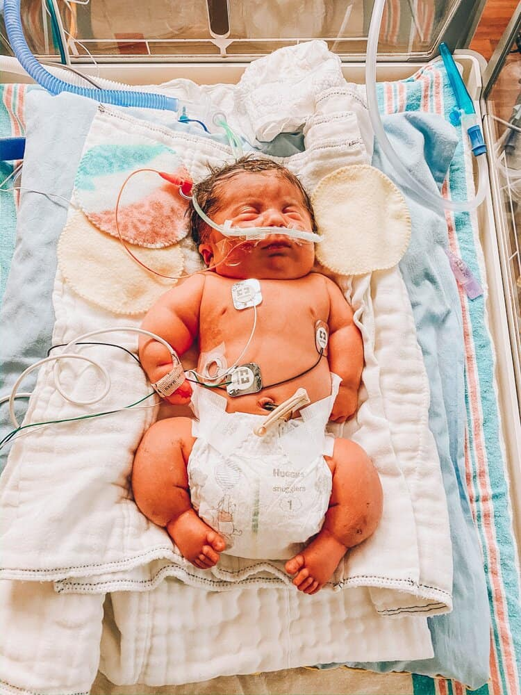 4-month-old boy born with brittle bone disease is this mom ...