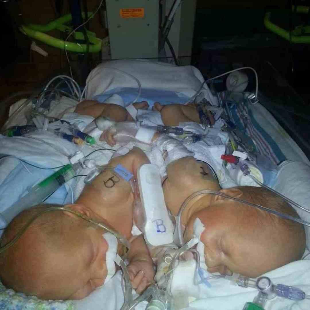 AT Wolfson Children's Hospital.