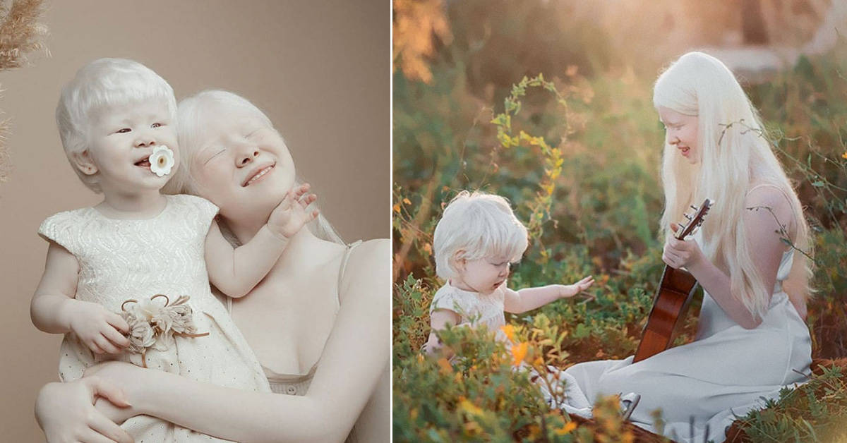 Albino sisters with 12-year age gap stun the world with their exceptional beauty - my positive outlooks