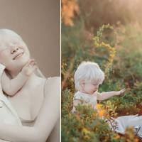 Albino sisters with 12-year age gap stun the world with their exceptional beauty