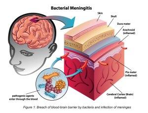 Meningococcal Meningitis  Positive Parenting
