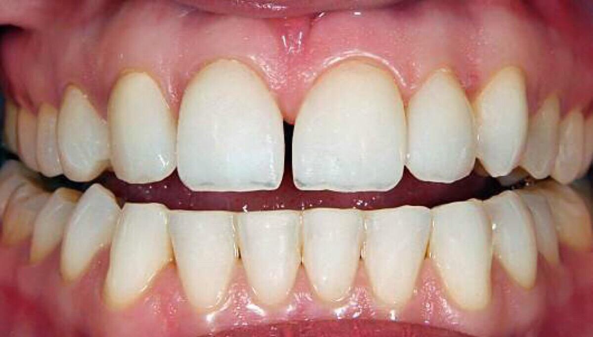 Human Body : Teeth