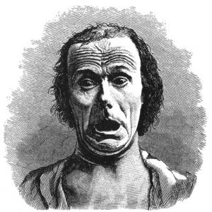 Dr. Duchenne (Public Domain)