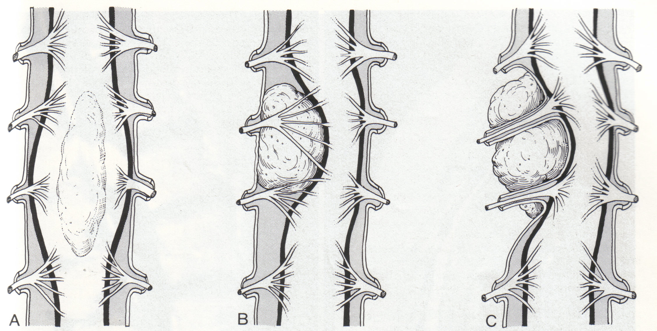 Spinal Mass Differential